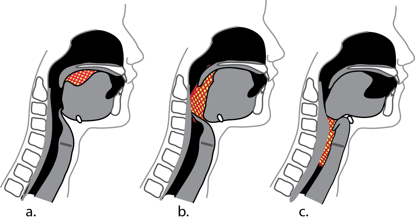 Swallowing is a complex coordinated series of movements. From Anyone Can Intubate, 5th Ed.